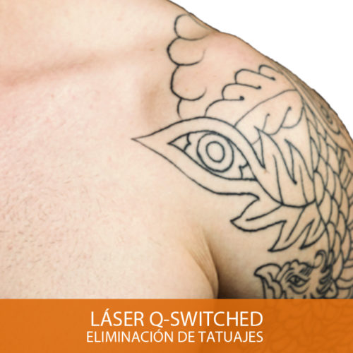 L-QSwitched-Tattoos